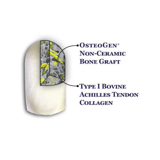 OsteoGen Plug - Bone Grafting Plug