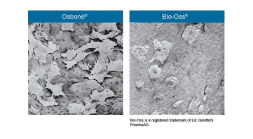 Osbone - Optimized Hydroxyapatite Osbone® By Curasan