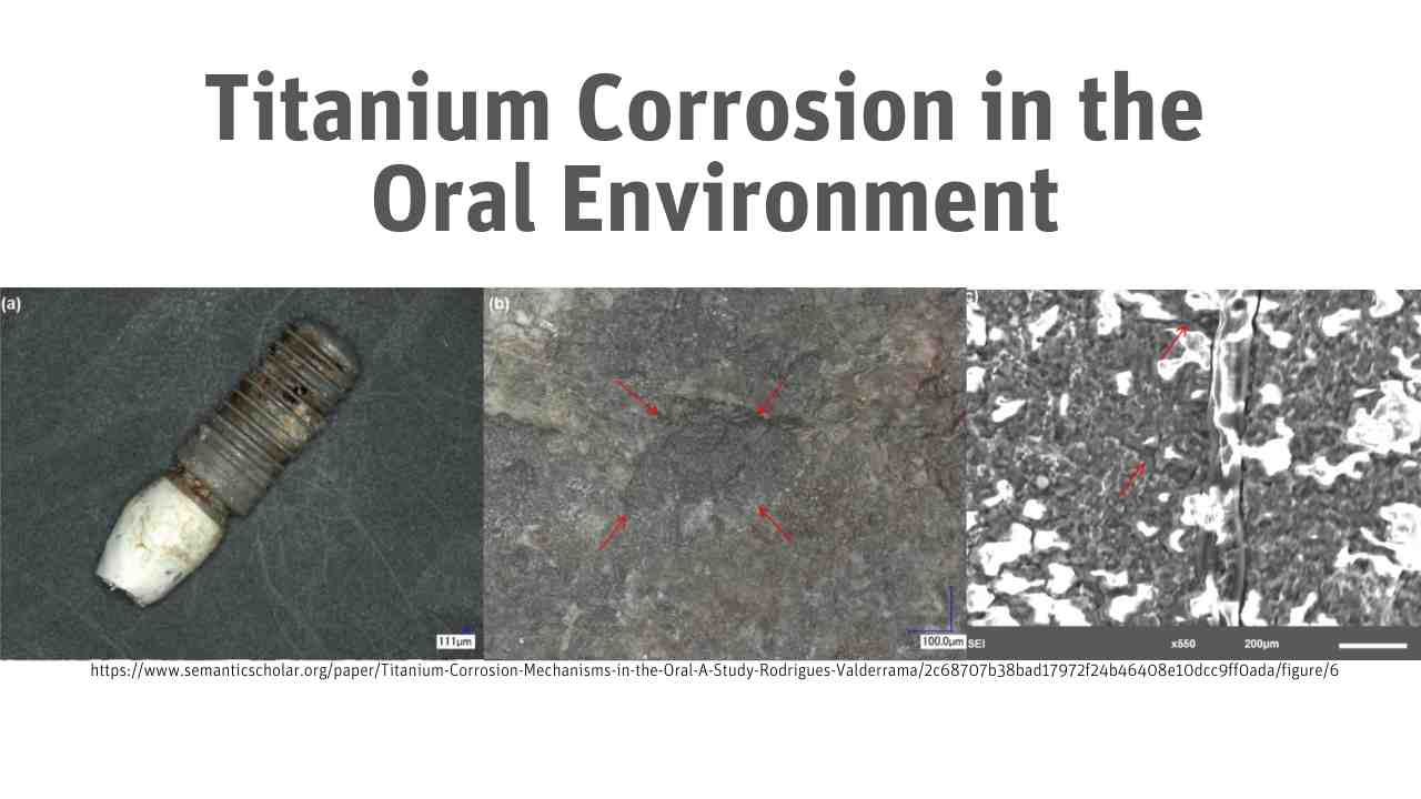 Titanium Corrosion in the Oral Environment