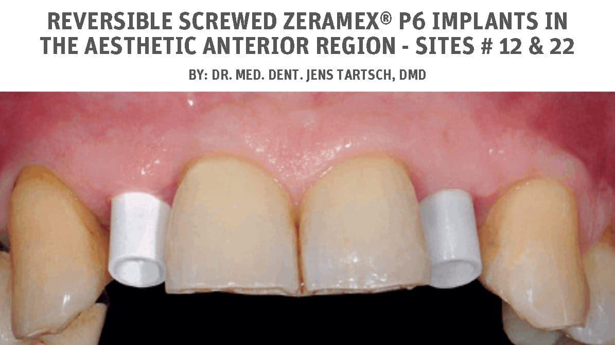 Reversible screwed ZERAMEX® P6 implants in the aesthetic anterior region