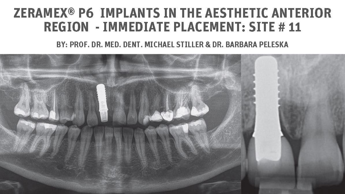 ZERAMEX® P6 implants in the aesthetic anterior region